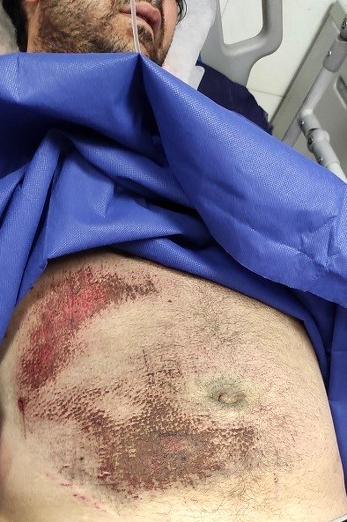 اولین عکس از عکاس خبری مجروح در بیمارستان + عکس