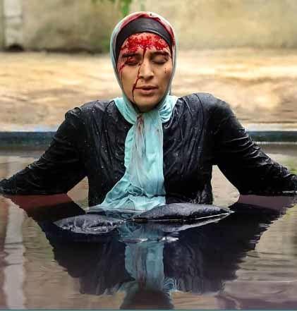 گریم خون آلود «اندیشه فولادوند» در بچه مهندس - موسیقی ایرانیان