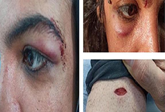 ماجرای کتک زدن زن آبادانی چه بود؟ + فیلم