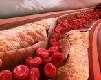 چگونه کلسترول خون را به سرعت کاهش دهیم؟ + راه درمان