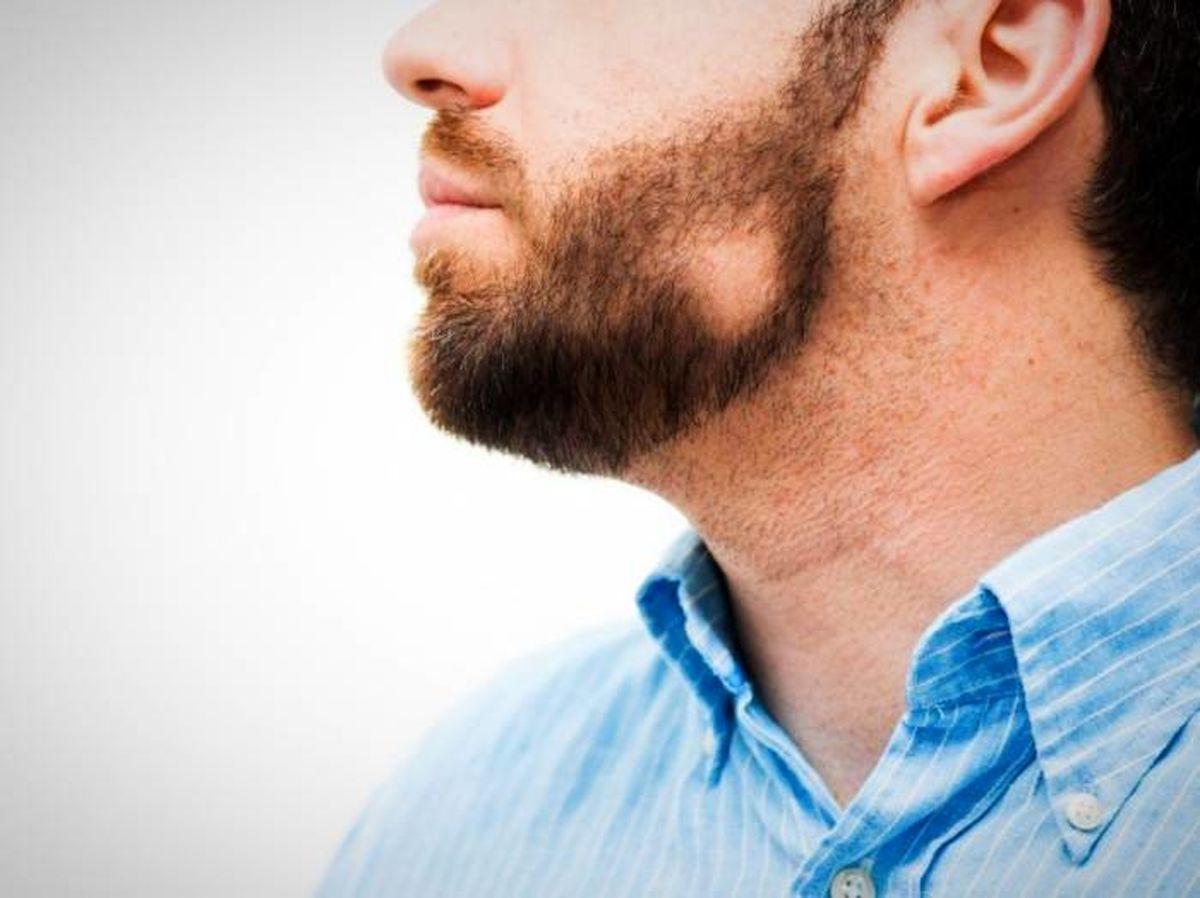 این بیماری ها از ریش مردان می آید