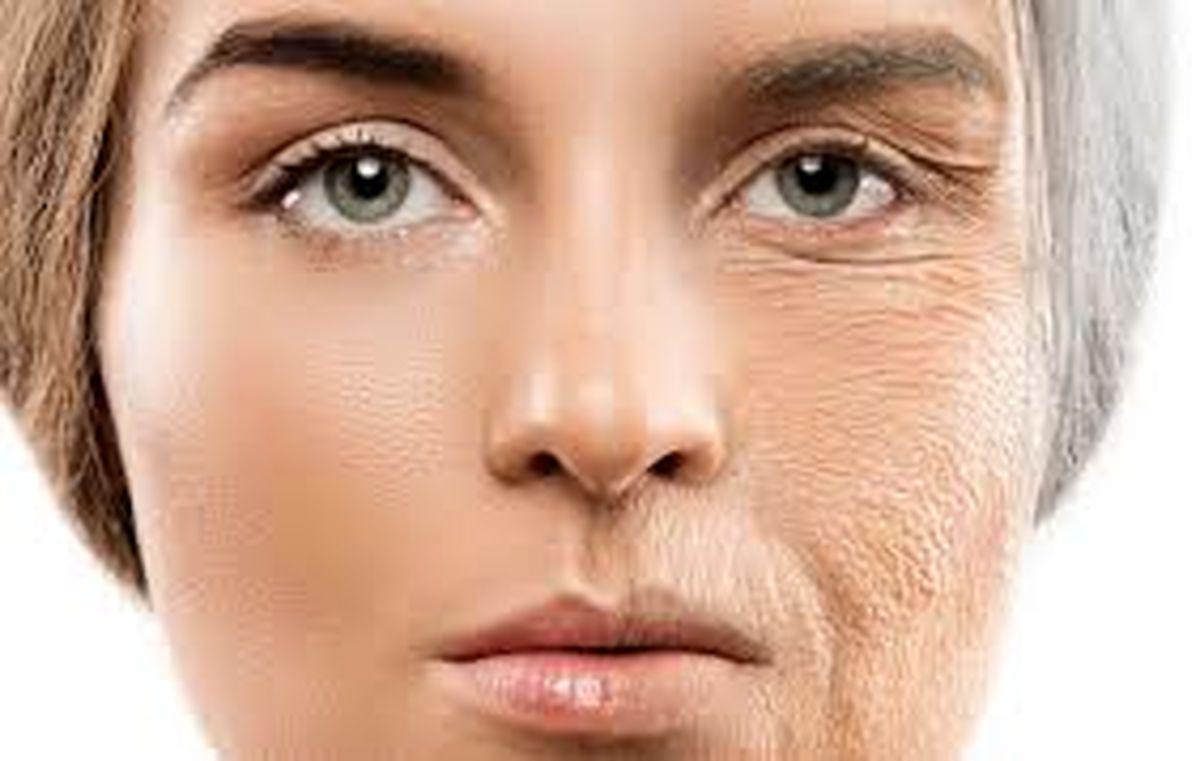 راهکار و روش های موثر برای پیشگیری از خشکی پوست