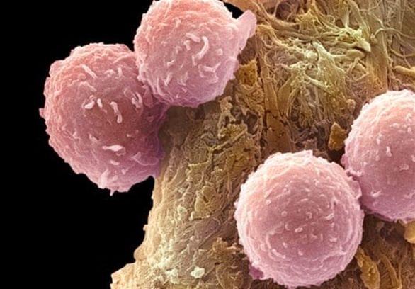 کشف کلید درمان تمام سرطانها