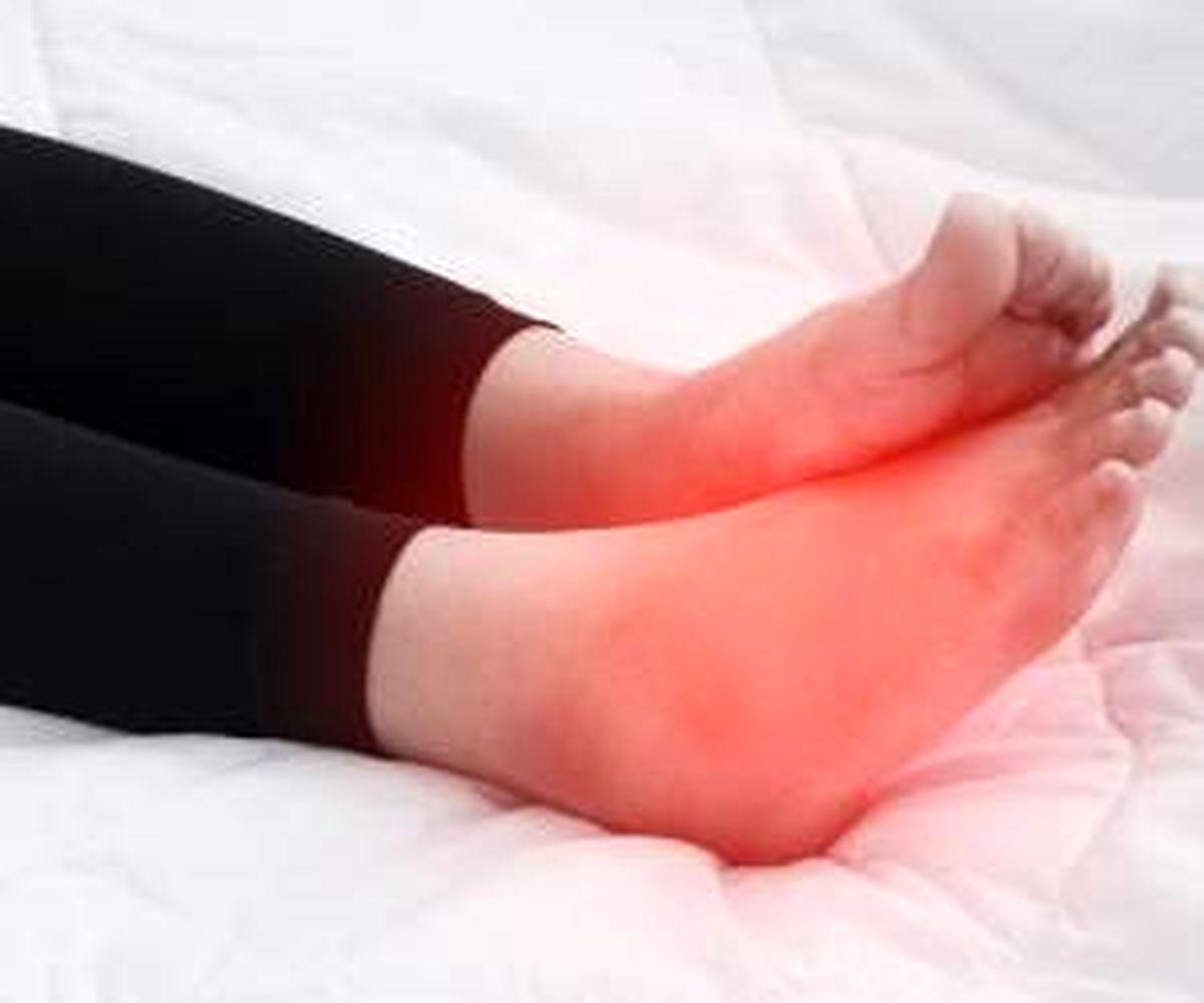 با این ادویه ورم دست و پا را فورا درمان کنید