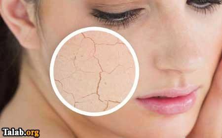 ۴ ماسک صورتی که ریشه خشکی پوستتان را می خشکاند