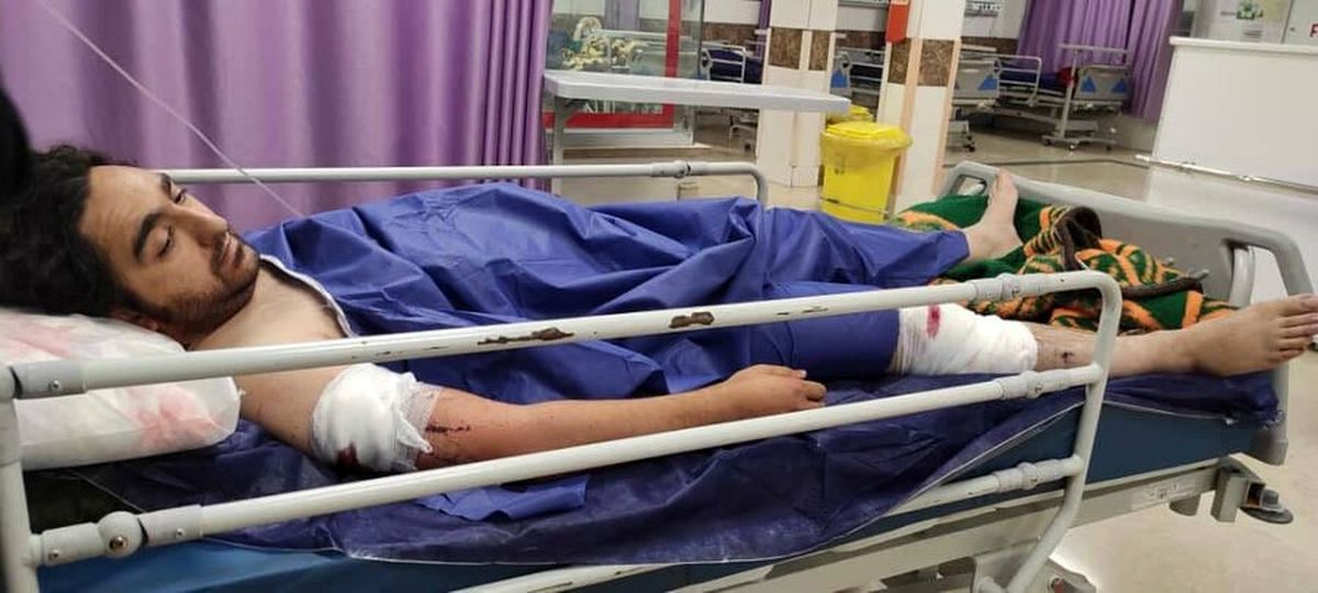 خفت گیری خونین از یک عکاس خبری در تهران/ سارقان21 ضربه چاقو زدند
