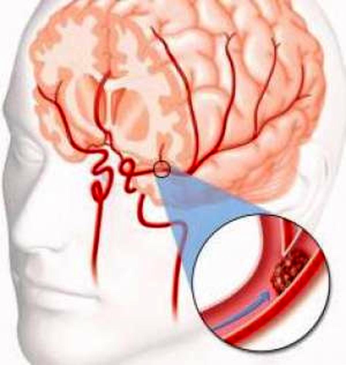 نجات فوری بیماران سکته مغزی با سوزن خیاطی!