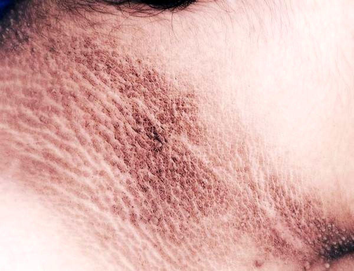 بیماری پوستی آکانتوزیس نیگریکانس چیست؟