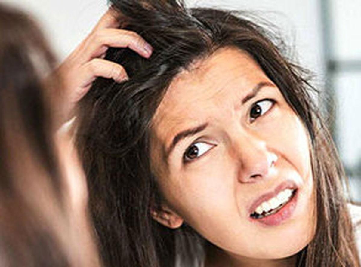 علت خارش سر چیست؟ + روش های درمان