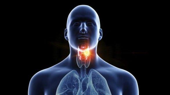 گلودرد دایمی میتواند نشانه سرطان باشد