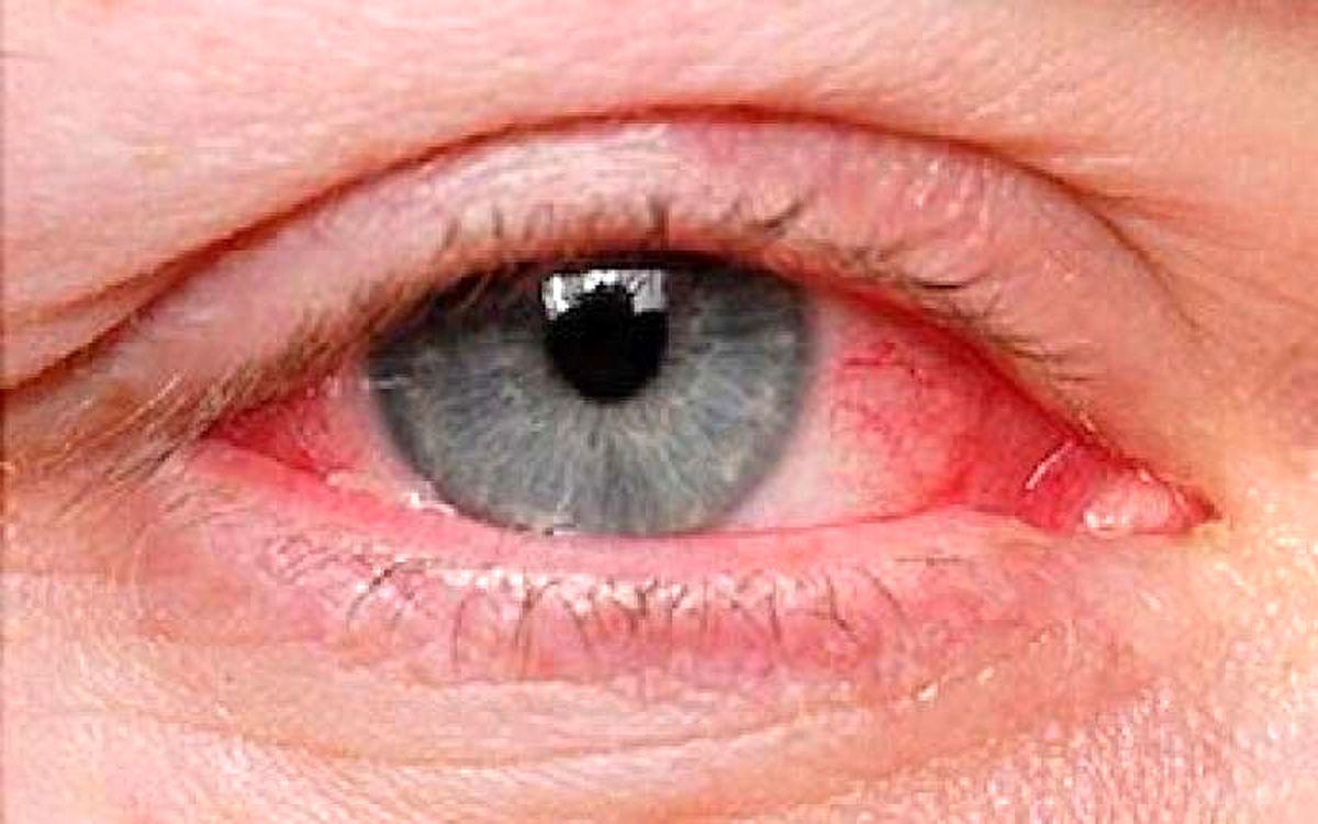 در فصل گرما مراقب این بیماری چشمی شایع باشید